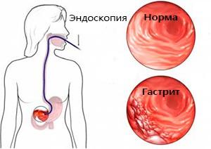 norma-diagnoz-gastrit