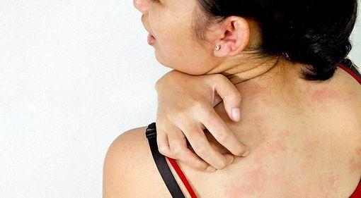 allergiya-na-kozheds