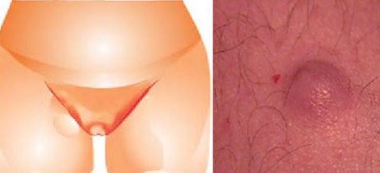 Причины появления шишки в паху
