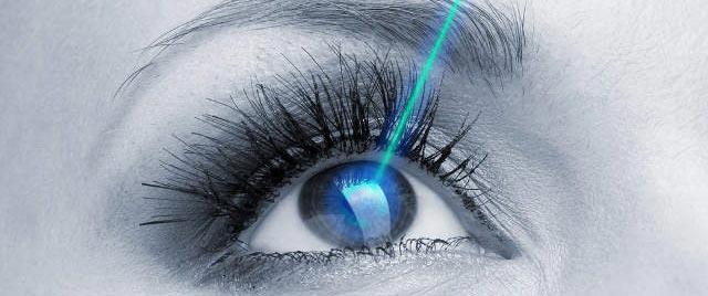 коррекция зрения ласик