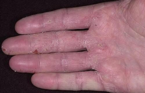 atopicheskij-dermatit-na-palcah
