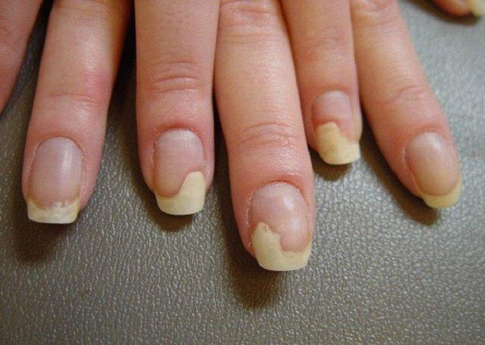 Лечение грибка ногтей на ногах борной кислотой