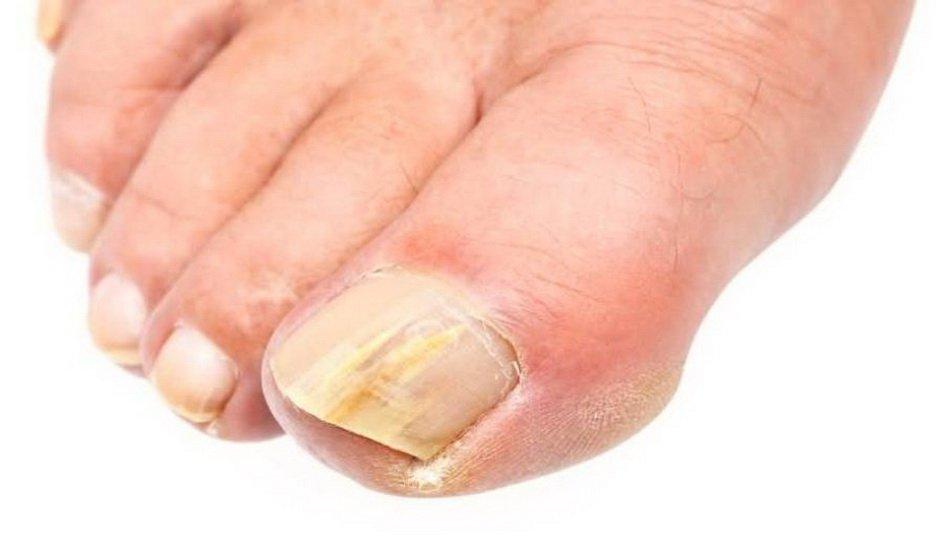 Как принимать Ирунин при грибке ногтей на ногах?