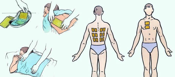 Горчичники на пятки при насморке у детей