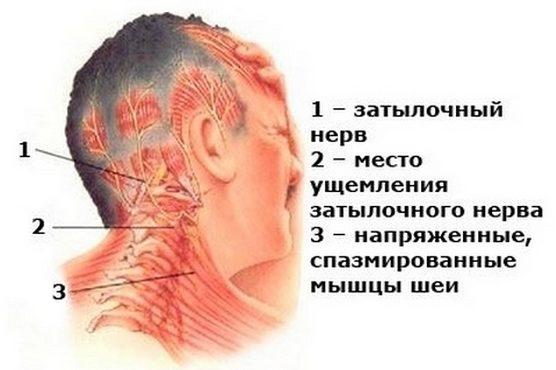 Ущемление затылочного нерва