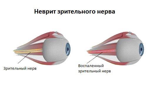 воспаление зрительного нерва
