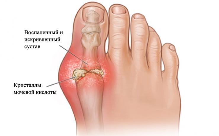 Симптомы и лечение артрита пальцев ног