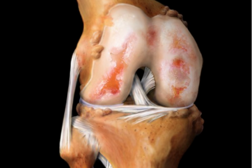 Методы лечения посттравматического артроза коленного сустава