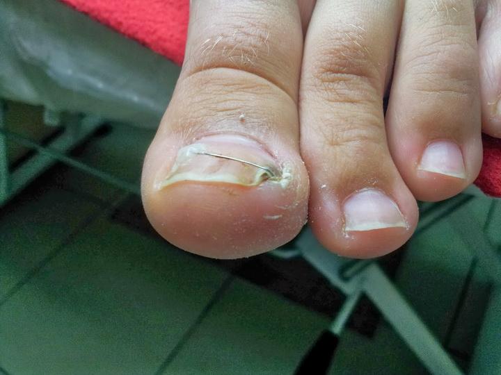 Действенные методы лечения вросшего ногтя на ноге