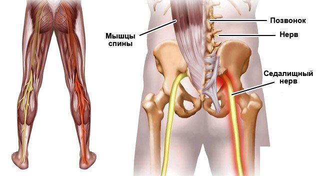 Лечение защемления нерва в бедренном суставе