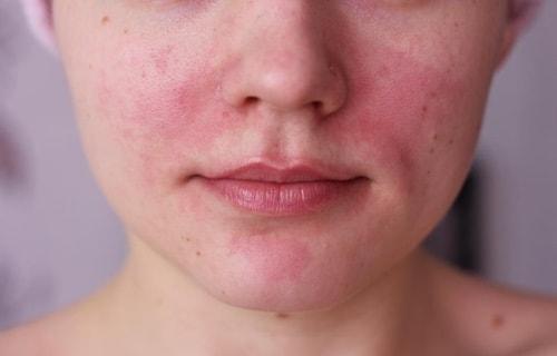 krem-ot-allergii-na-lice