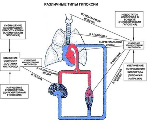 Различные типы гипоксии