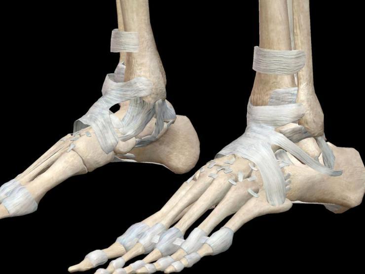 Диагностика и лечение асептического некроза таранной кости