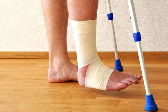 Причины появления отеков после перелома