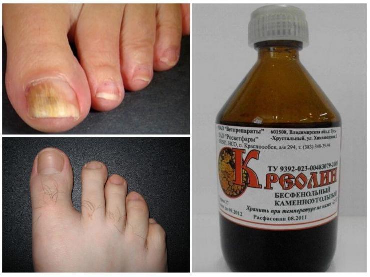 Лечение грибка ногтей &quot,Креолином&quot,