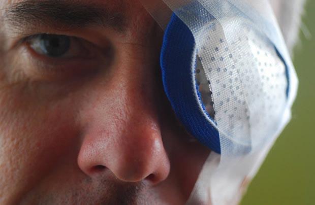 рекомендации после удаления катаракты