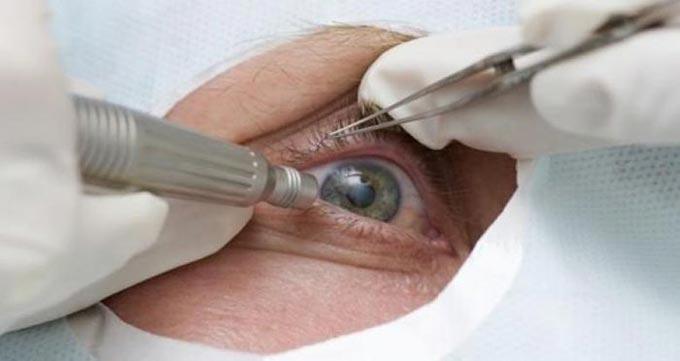 хирургическое лечение внутреннего ячменя