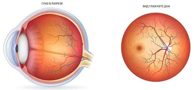 вид глазного дна