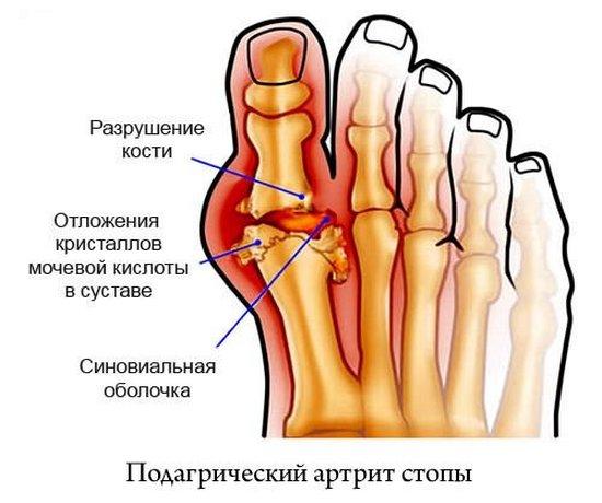 Подагрический артрит стопы