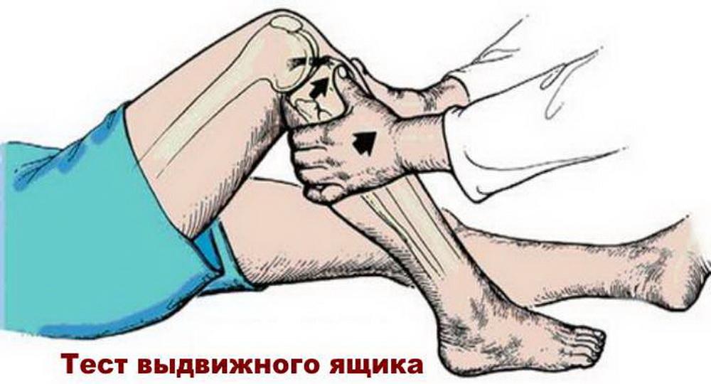 Виды разрыва крестообразной связки коленного сустава, лечение и реабилитация