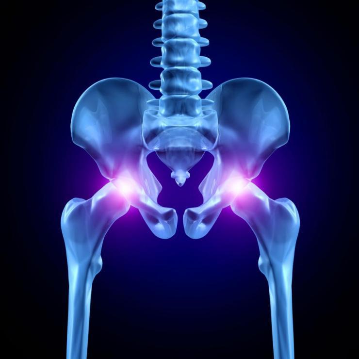 Целесообразность проведения рентгена тазобедренного сустава