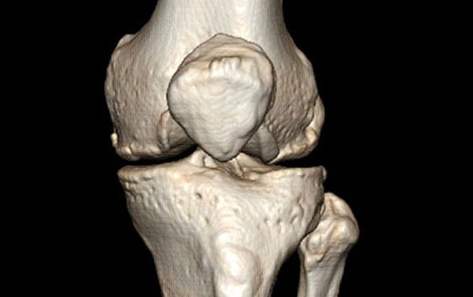 Что показывает КТ коленного сустава