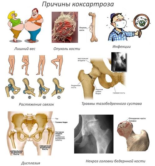 Причины коксартроза