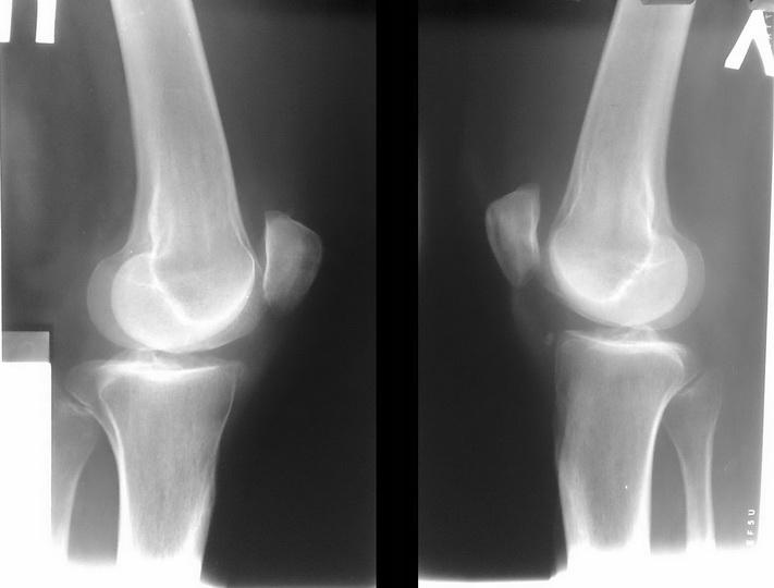 Лечение суставной мыши коленного и тазобедренного сустава