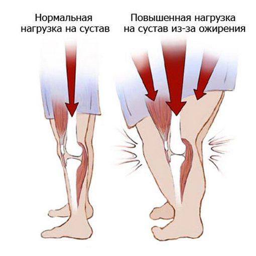 Нагрузка на сустав из-за повышенной массы тела