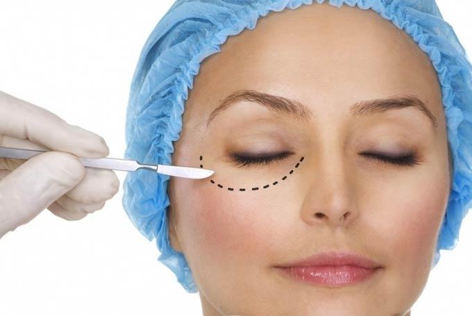 лечение грыжи под глазами без операции