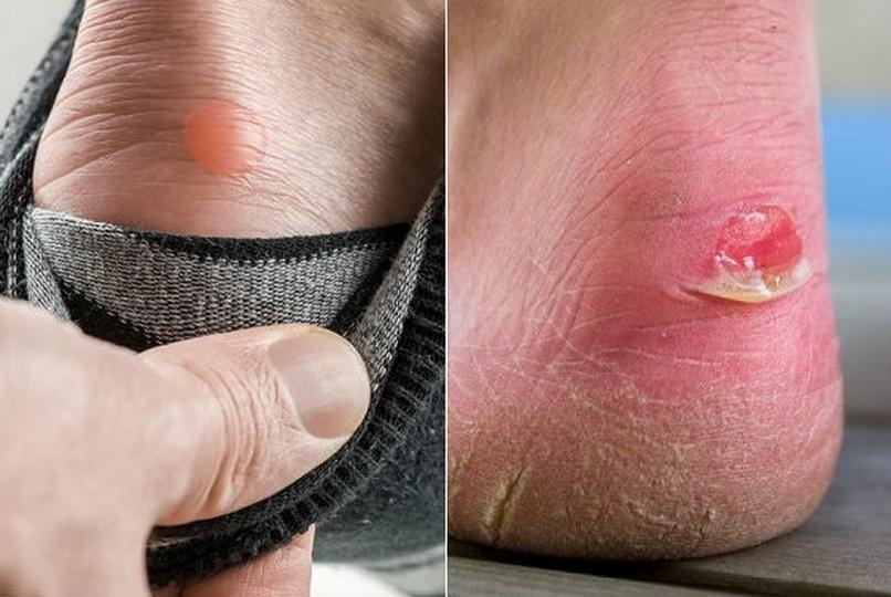 Способы лечение водяной мозоли на ноге