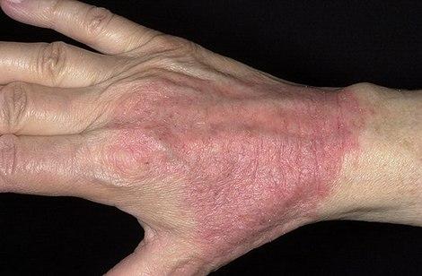 dermatit-na-ruke