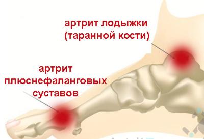 Заболевания подошвенных мышц стопы