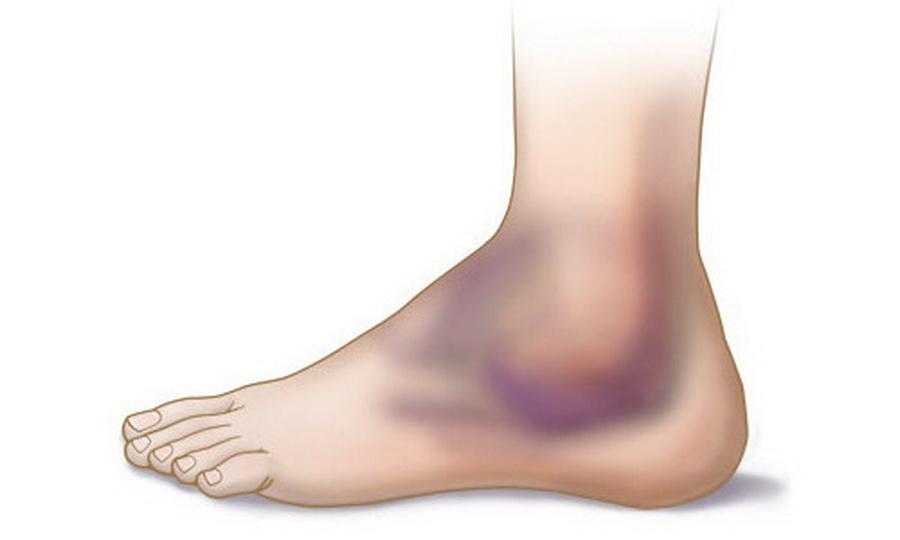 Болит нога в области стопы сверху: что делать, если очень больно наступать и есть припухлость