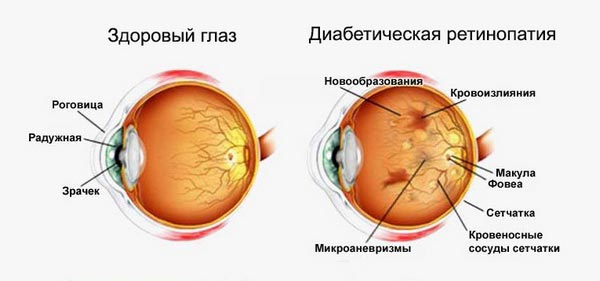ретинопатия сетчатки