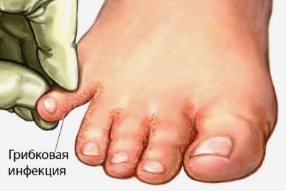 gribkovaja_infekcija