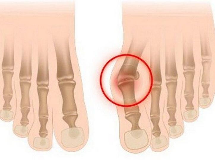 Заболевание суставов нижних конечностей: лечение артроза народными средствами