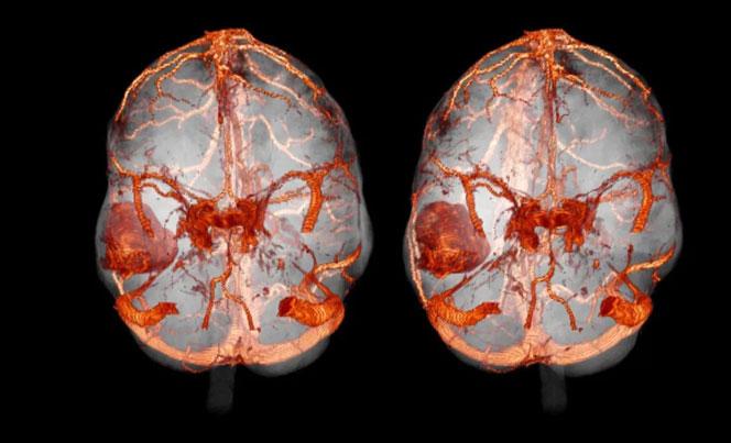 КТ с контрастом головного мозга