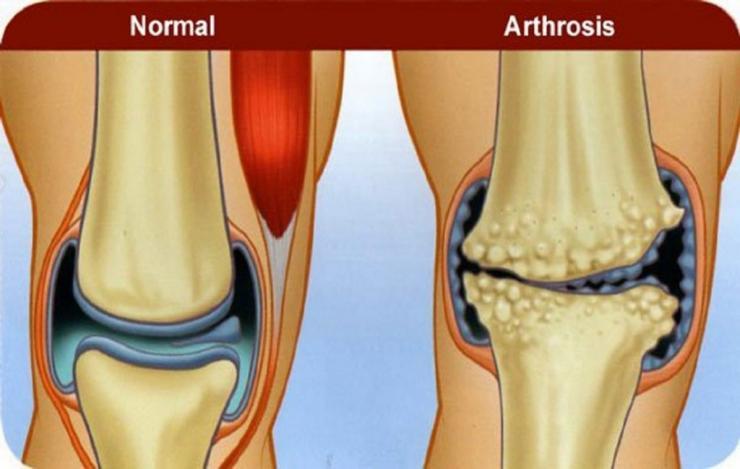 Почему хрустят пальцы на ногах и голеностопный сустав