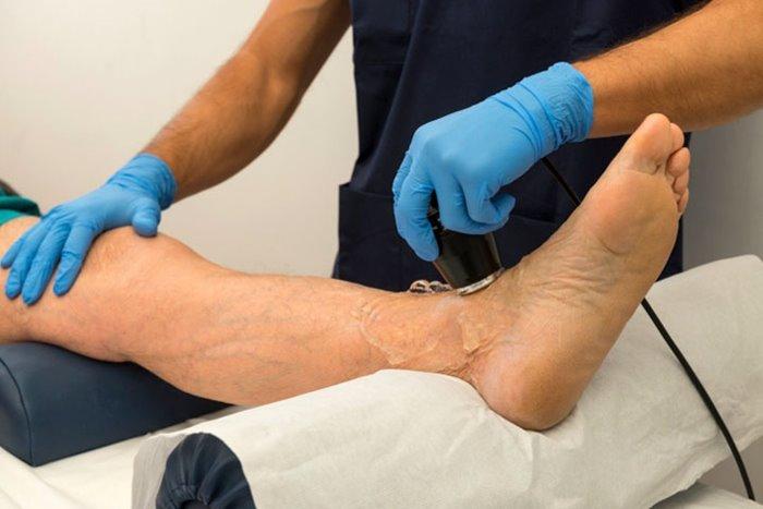 Виды ишемии нижних конечностей и особенности терапии