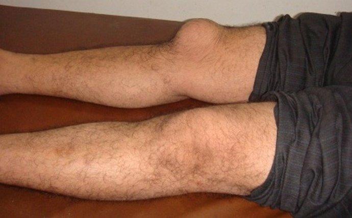 Симптомы и лечение отеков бедренной и большеберцовой кости