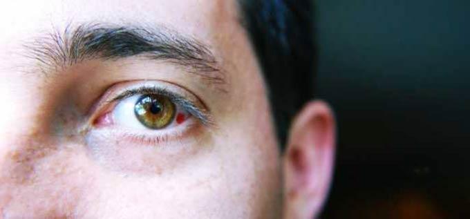 причины кровоизлияния в глаз
