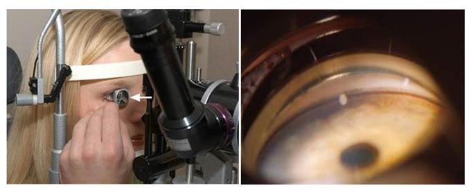 метод гониоскопии