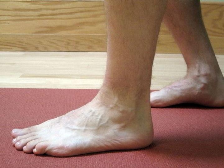 Как лечить разрыв и растяжение связок и мышц на ноге