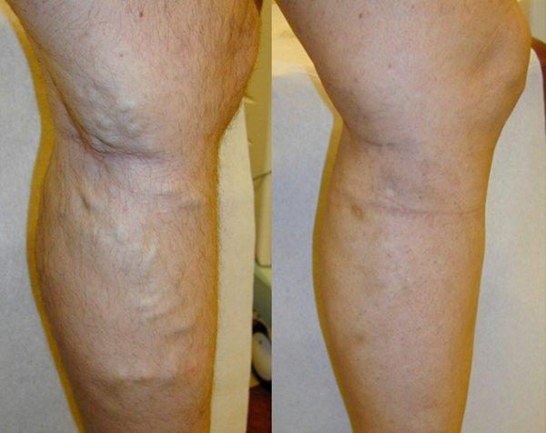 Особенности проведения флебэктомии вен на ногах