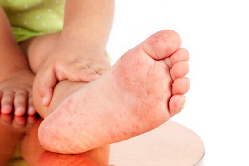 Лечение грибка стопы у детей