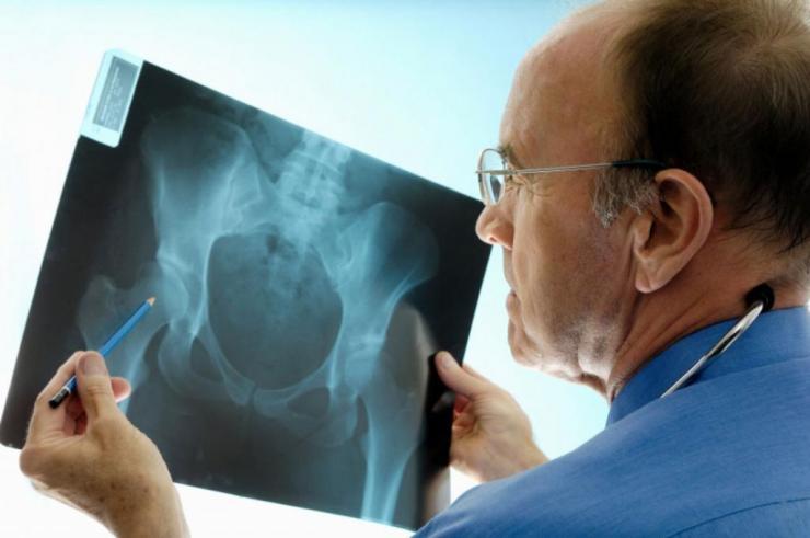 Симптомы вывиха бедра и способы вправления сустава
