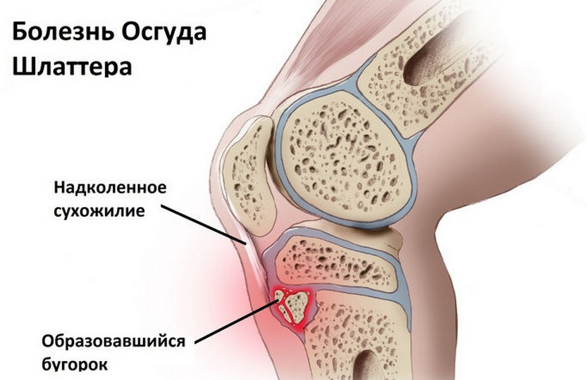 Болезнь Шляттера, остеохондропатии бугристости большеберцовой кости