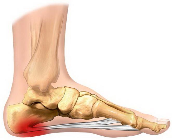 Что делать при болях в ступне ног во время ходьбы