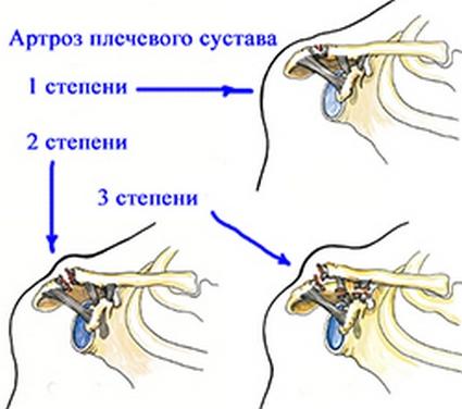 Степени развития артроза плечевого сустава